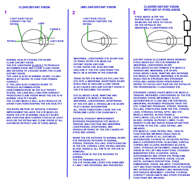 Strong eyeglasses vision impairment verses reduced weaker eyeglassesvisionimpairmentg geenschuldenfo Choice Image