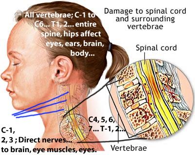 Spinal Cord Injury Ringing Ears
